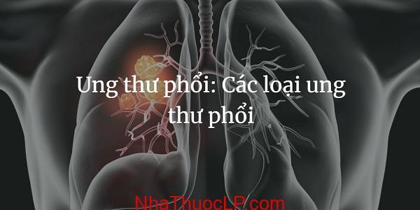Ung thu phoi, Cac loai ung thu phoi (1)